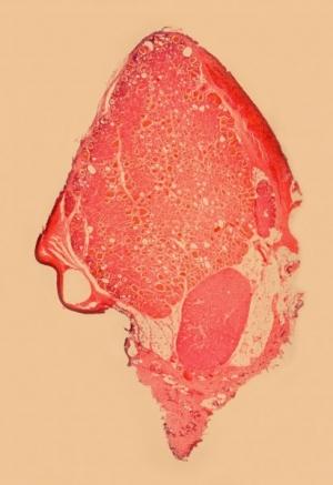 Thyroid Gland 10-frame mosaic