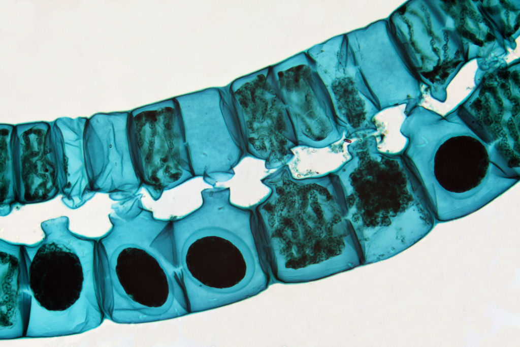 Spirogyra in conjugation